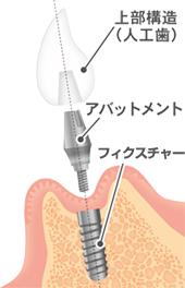 インプラント治療の症例